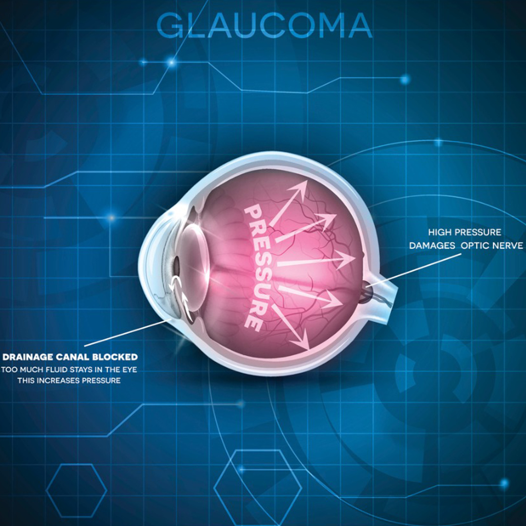 Adult Glaucoma Treatment