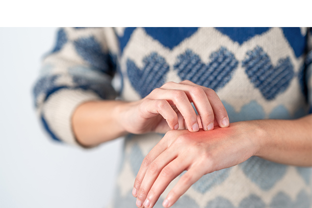 Ways to Prevent Hand Dermatitis