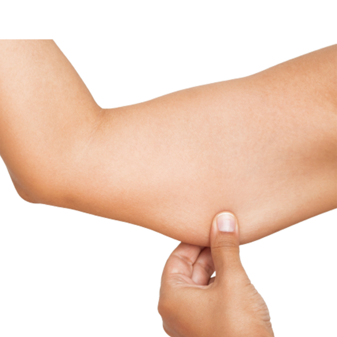 Skin Sagging: What Causes it and How We Treat It?