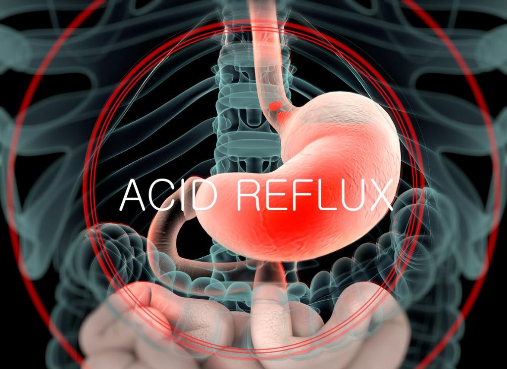 Acid Reflux Treatment