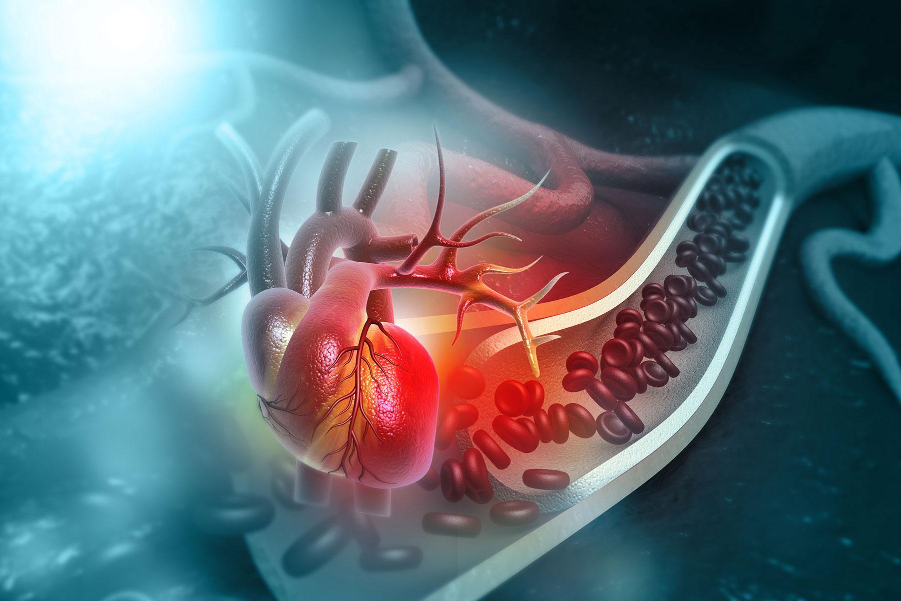 Cardiomyopathy and chronic heart failure