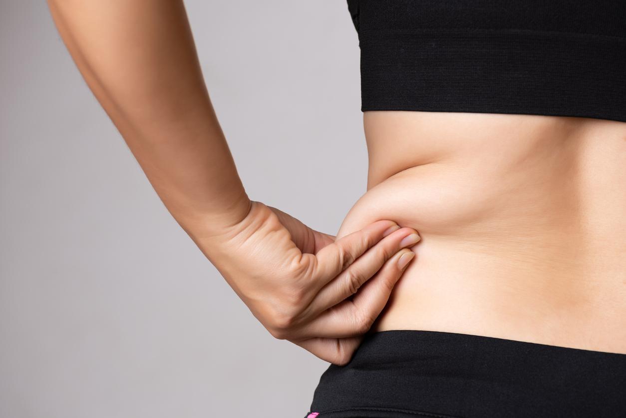 شفط الدهون - الجذع